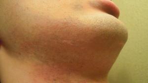カミソリ負けで肌が痒くなった男性