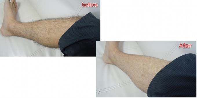 leg-grooming-before-after